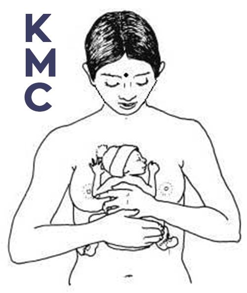 Kangaroo Mother care or KMC